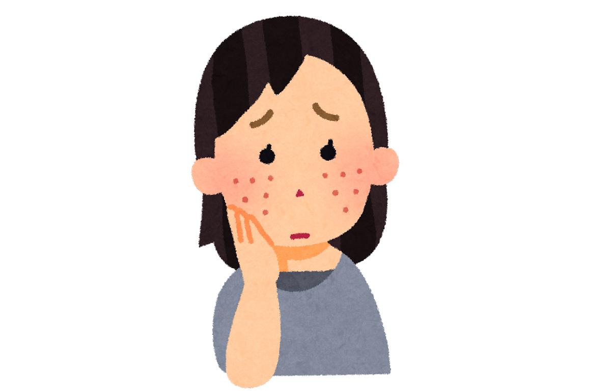 産毛が濃くて毎日のように処理をする人は、どうしても肌が荒れてしまいます。