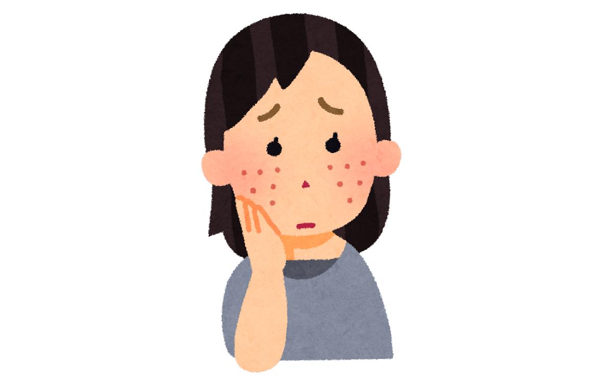 電気シェーバーで顔の産毛を剃る時は、ニキビや肌荒れが少なく、肌のコンデイションが良い時にしましょう。
